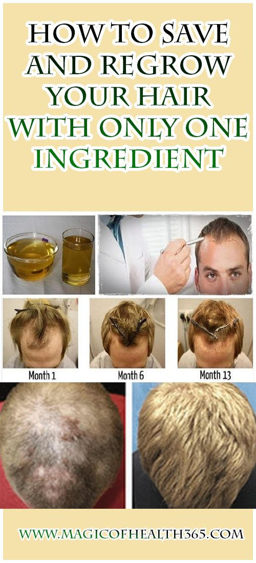 How To Save And Regrow Your Hair With Only One Ingredient