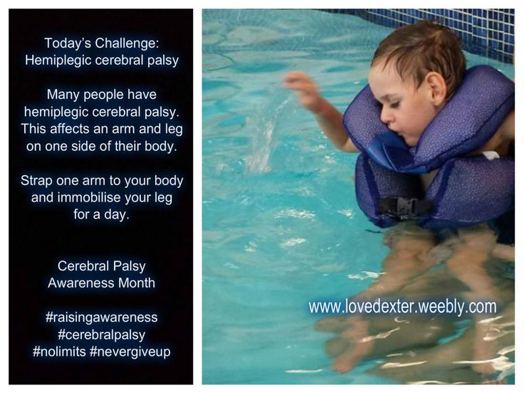 Hemiplegia - Many people have cerebral palsy which affects their body on one…