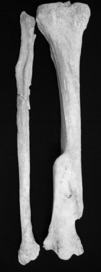 Fracture Treatment in Iron Age and Roman Britain (c : Katy Meyers, Bones Don't Lie).  Click through to the link, it is really interesting!