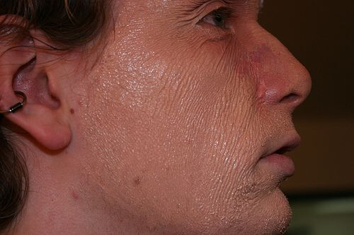 Aging with latex Pull skin tight then together with laxet to give aging effect