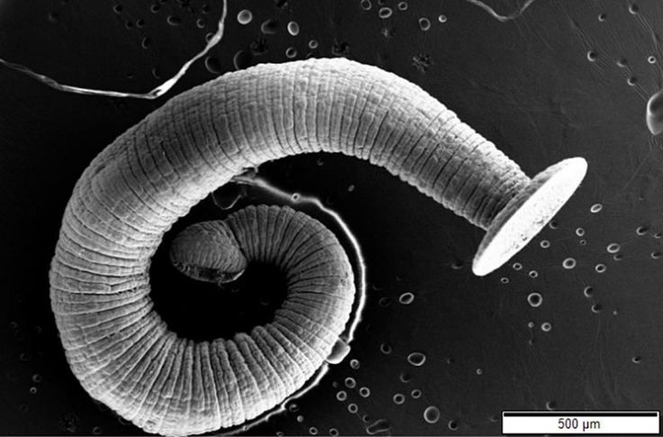 The Horrifying Legacy of the Victorian Tapeworm Diet | Atlas Obscura