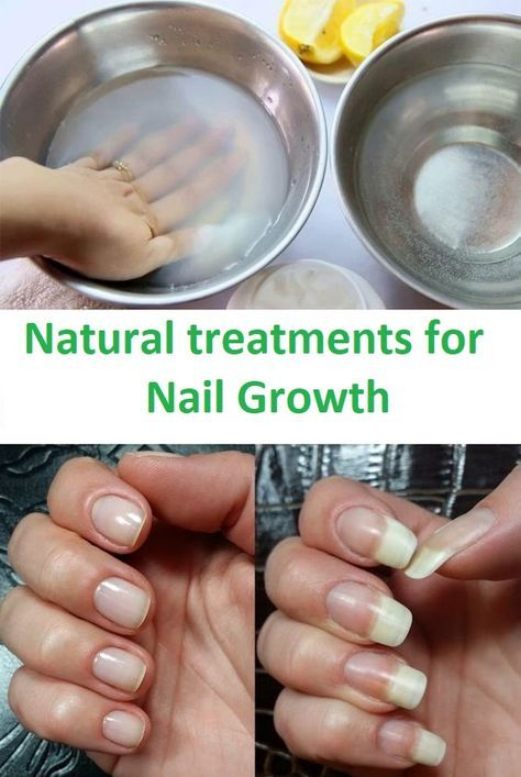 Remedy That Makes Your Nails Grow Faster in Just 8 Days | Pinterest ...