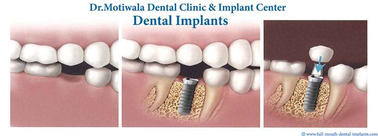 #Permanent Teeth Implants in 3 days with Lifetime Warranty In our center, we assure you to deliver beautiful Permanent Teeth with Implants which have great aesthetic appeal. In #3 days of Implants Placement, we deliver fixed prosthesis. Patients don't need to come for multiple long term visits to get this treatment which has happened on the other traditional treatments. http://full-mouth-dental-implants.com/permanent-teeth-implants.php