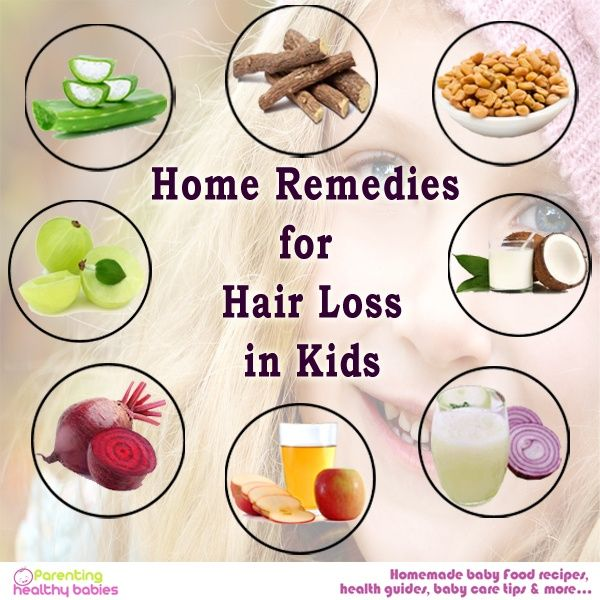 Home Treatments For Hair Loss In Children With Images Treat