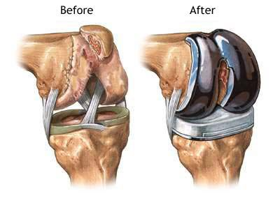 Stem Cells: Alternative to Knee Replacement?