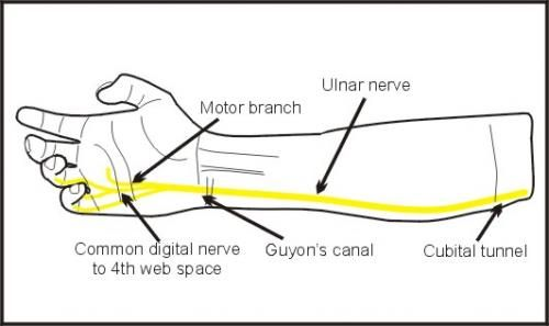 Functions lost after a low ulnar nerve palsy: Key pinch (paralysis of the AP mm), proficient grip (clawing), tip pinch (loss of first dorsal and second palmar interossei prevents distal stability and rotation).