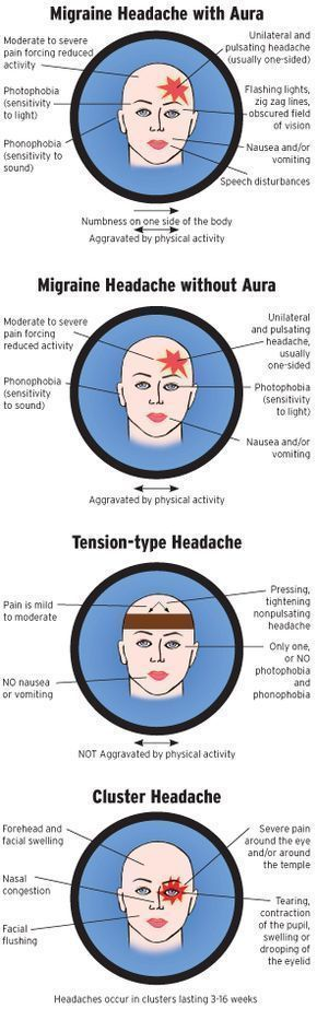 Types of Headaches | the most common types of repeating headaches are migraine tension and ... #headacheinfographic #headachevsmigraine #headacheremedies