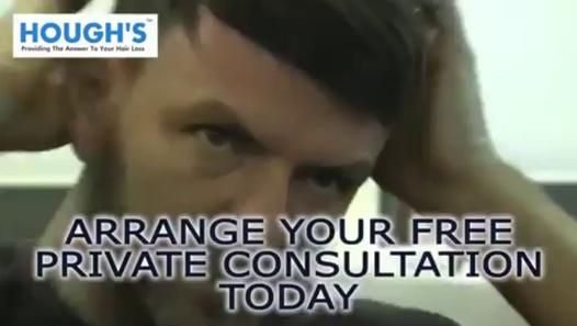 Looking for Hair Replacement Wolverhampton? Our specialist can help you related your hair loss problem, watch this video to get answer to your hair loss problem.