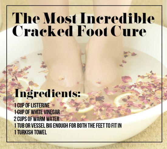 Vinegar and Listerine Cracked Heel Remedy