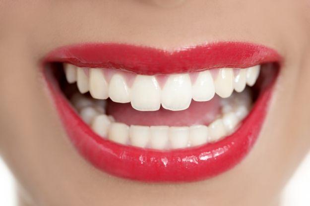 Nierówne, ukruszone, pęknięte, przebarwione, za krótkie, za wąskie, zbyt żółte, za szare – takim zębom daleko do hollywoodzkiego uśmiechu. Chyba, że niedoskonałości przykryją porcelanowe licówki. https://implantis.com.pl/ #protetyka #dentysta #Implantis
