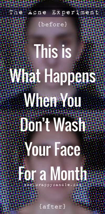 27 Best Images About The Acne Experiment On Pinterest