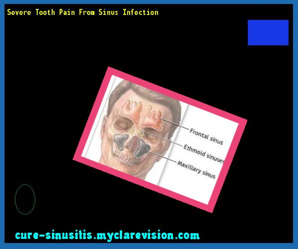 Severe Tooth Pain From Sinus Infection 074520 - Cure Sinusitis