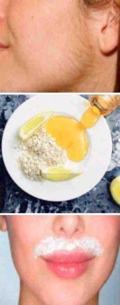 Solo 3 ingredientes y 15 minutos para esta receta y quitar tu vello facial. Piel de bebe! #vellofacial #quitar #DIY