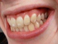 ¿Qué consecuencias trae un mal retiro de la aparatología de ortodoncia? ¿Puede ocurrir que me retiren mal los aparatos de ortodoncia?¿Puede ocurrir que me retiren mal los aparatos de ortodoncia?