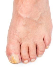 Photo of a person's foot with thick yellow toenails