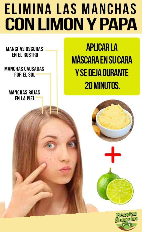 010963259511 Elimina las manchas de su cara Esta crema casera estará hecha de yogur y  áloe vera