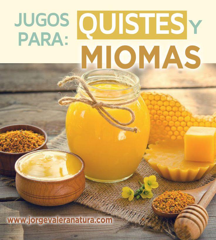 Jugo de polen para Miomas, fibromas y quistes de ovario
