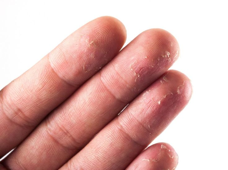 Hand eczema may cause skin peeling on fingertips