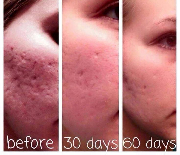 Nerium Results! Amazing! Click Here: amandawehner.nerium.com