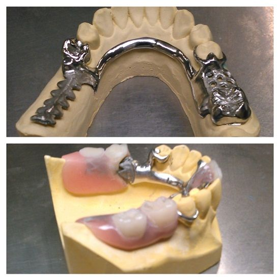 Dentaltown - Dentistry has always had amazing, high quality, low cost alternatives to high cost dental treatments such as implants, root canals, crowns, and bridges. A removable partial denture can replace many missing teeth for a very low cost and have very high patient satisfaction.
