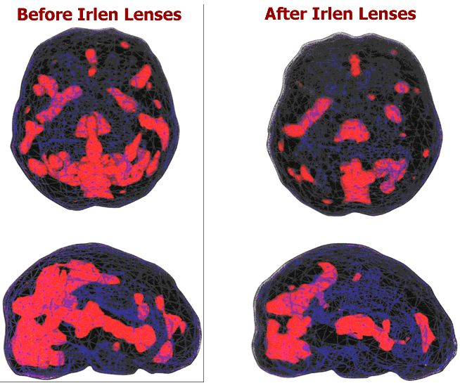 Amen Clinic SPECT scans of an individual experiencing Visual Stress and then after they put on their precision tinted lenses.