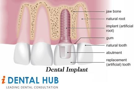Now when you have made up your mind to go for dental implant for your missing tooth or teeth, the first thing you would like to see is what types of different dental impants are in use and which will be best for me. Ther are two kinds dental implants and these are Endosteal Dental Implant and Subperiosteal Dental Implant.