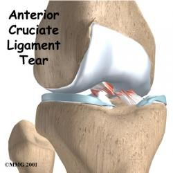 Derrick Rose and Anterior Cruciate Ligament Tears: Decision Making - Let's learn a little more about this injury - what is the anterior cruciate ligament and what happens when it tears?