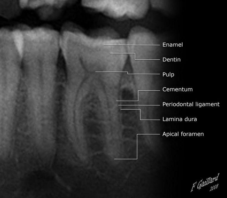 Dental anatomy                                                                                                                                                                                 More