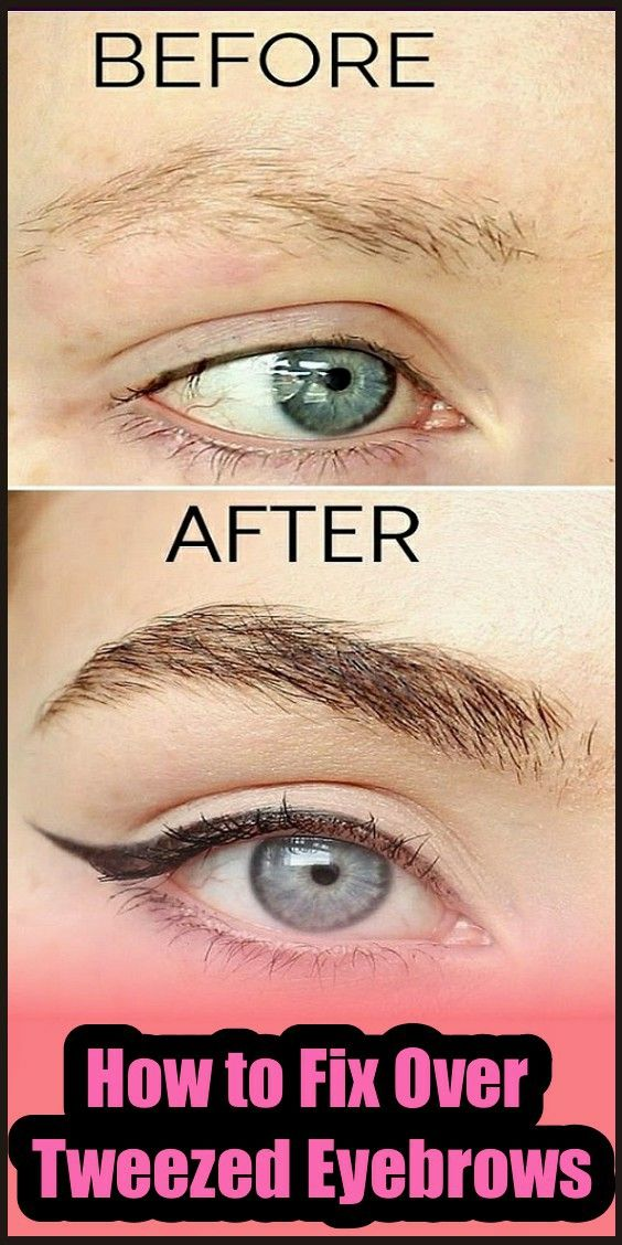 How To Fix Over Tweezed Eyebrows En 2020