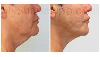 Chin with SmartLipo - 4 months
