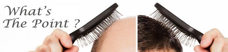 Best Hair Transplant FUE FUT Eyebrow Delhi Hair Loss Treatment India