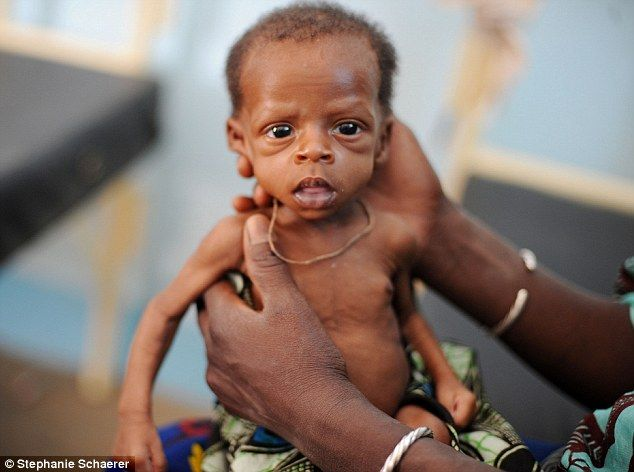 Starving African Child Belly Portrait of a tragedy:...