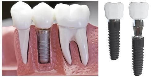 What are the benefits of Dental Implants? It is a surgical process which involves certain percentage of risk. But it has many advantages also which we have mentioned here.