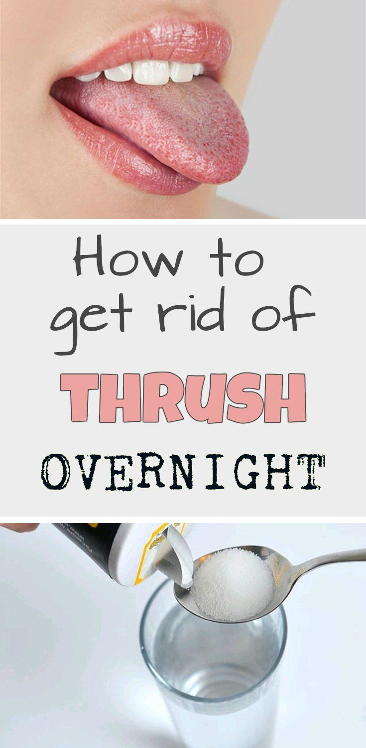 Learn how to get rid of thrush overnight.