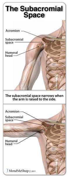 Shoulder Impingement Syndrome occurs when the subacromial space lesses due to misalignment, abnormal bone growths, thickening of the tendon, or swelling in the bursa.