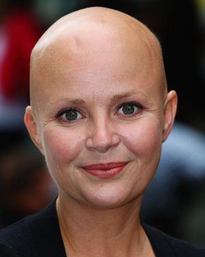 Famous Bald People Google Search Bald People People