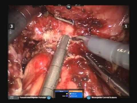 Holy Sh*t! This video is not for the faint hearted. Robotic surgery for severe #endometriosis. K.M. Konstantinidis