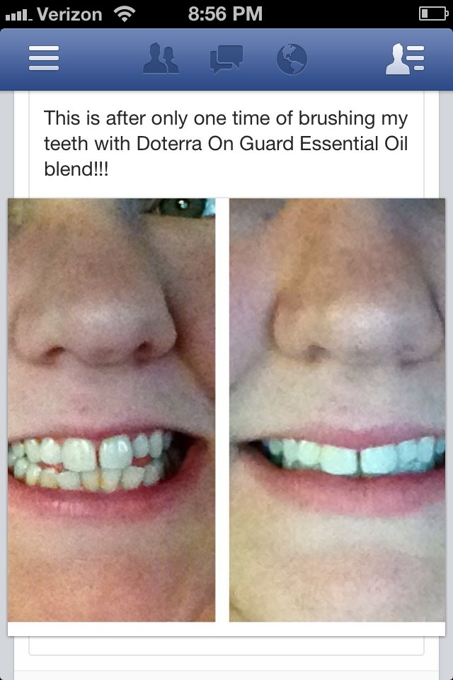 She used doterra oil blend on guard to naturally whiten her teeth