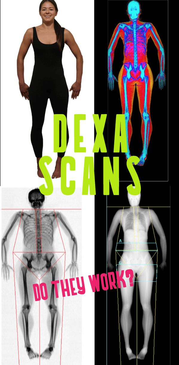 Thinking about getting a dexa scan? Read about our experience and how you can use it to measure real results. Follow theunconventionalroute.com #dexascan #fitnesstest #travelbloggers #dexa #bodyfattest #measurefat #fitnesstest #unconventionaltest #travel #travelbloggers