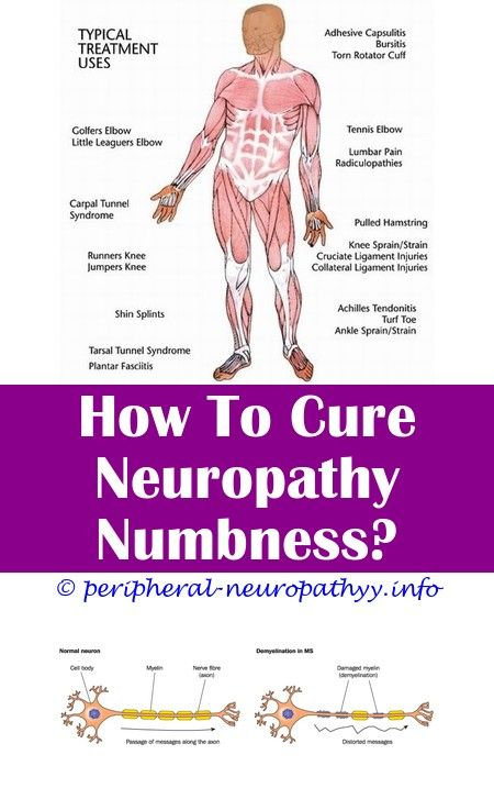 Type 2 Diabetes With Peripheral Neuropathy Icd 10