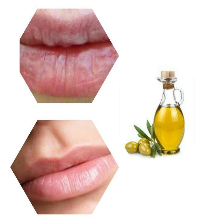 Labbra secche e screpolate? Basta passare un po d'olio d'oliva in esse.A seconda della situazione delle vostre labbra esse ci metteranno di più o di meno per riprendersi del tutto.Basta passare quotidianamente finché non si è soddisfatti del risultato.