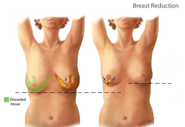 Pin On Breast Reduction Cost In Lahore