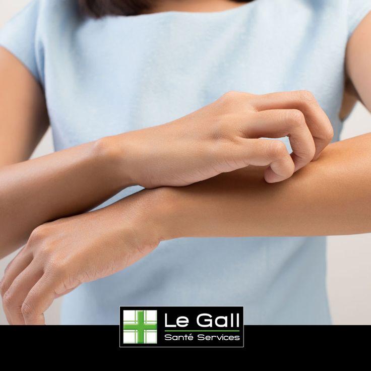 """Ne nous laissons pas """"embêter"""" par les moustiques qui sont particulièrement présents cet été.  #legall #puressentiel #sante #services #conseil #confiance #moustiques #piqures #demangeaisons #solution #ete #summer"""