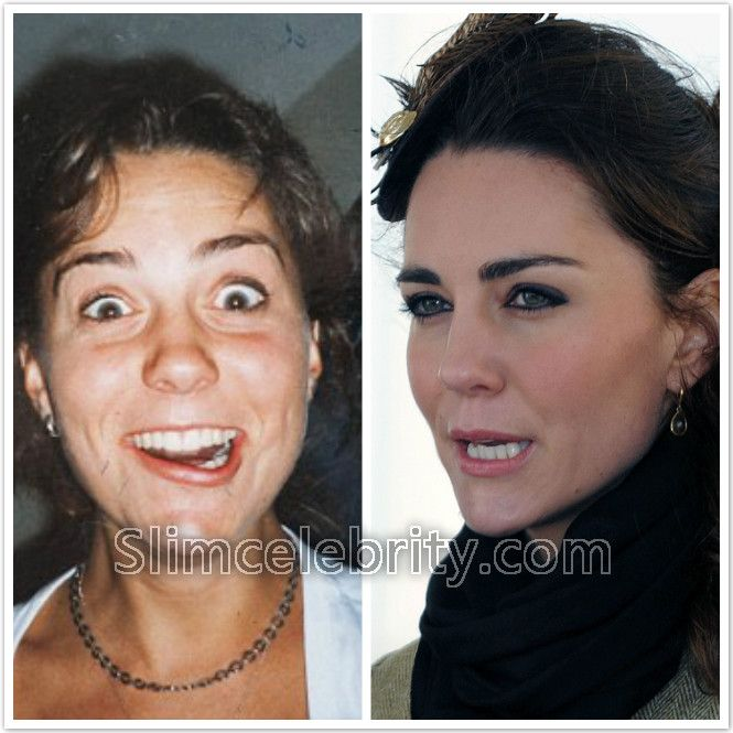 Kate Middleton Plastic Surgery Before And After Photos