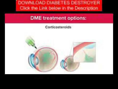 Diabetes Natural Remedies - Animation AntiVEGF Treatment of Diabetic Macular Edema DME - WATCH VIDEO HERE -> http://bestdiabetes.solutions/diabetes-natural-remedies-animation-antivegf-treatment-of-diabetic-macular-edema-dme/      Why diabetes has NOTHING to do with blood sugar  Animation AntiVEGF Treatment of Diabetic Macular Edema DME –  There are various methods to avoid establishing diabetes mellitus. Type 2 diabetes is easily the most frequent and may be eliminated