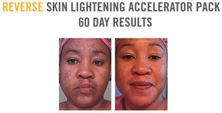 Can skin bleaching be reversed?