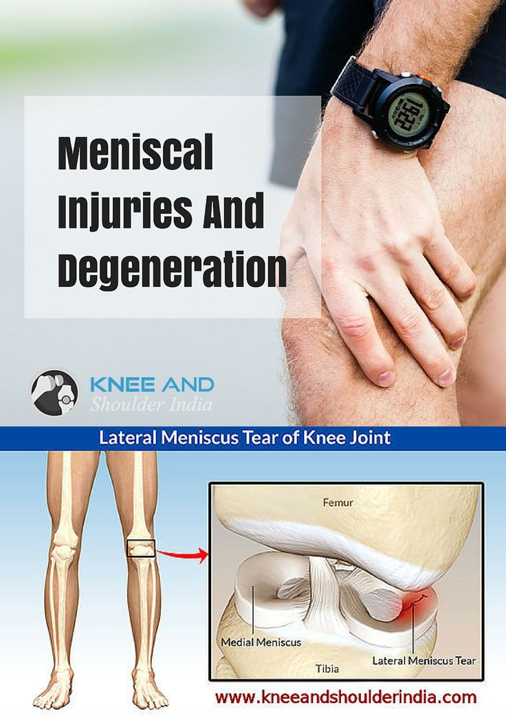 "‪‎Meniscus Tears‬ are among the most common knee injuries. Athletes, particularly those who play contact sports, are at risk for meniscal tears. ‪Causes‬: Sports injuries, sudden twisting of knee, degenerative meniscus tears in old ages. ‎Symptoms‬: popping sounds in knee, pain and swelling, the sensation of your knee ""giving way"""