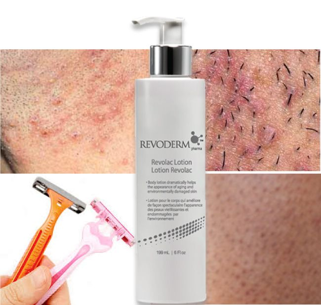 Revoderm Revolac Lotion™ with 10% AHA Lactic Acid is an anti-aging, moisture powerhouse. It's clinically formulated for dry, sun-damaged skin, ingrown hair and keratosis pilaris. This fast absorbing creamy, antioxidant rich intense hydrator creates a moisture barrier leaving your skin feeling soft, smooth, exfoliated and younger looking. Ideal for neck, chest, hands, and dry heels.