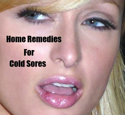Best 5 Home Remedies For Cold Sores