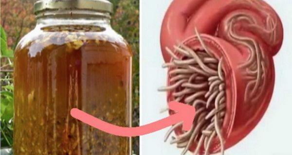 Самый мощный природный антибиотик, он лечит любую инфекцию в теле и убивает паразитов! ~ Шкатулка рецептов